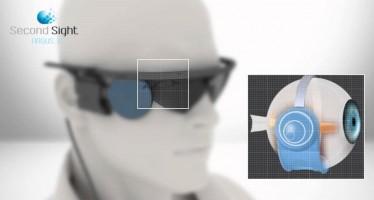 Hi-Tech во всём: бионические глаза Orion